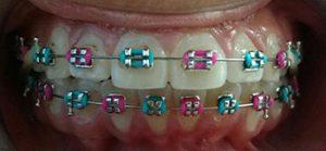 Tratamiento de <br> Ortodoncia Correctiva