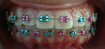 Tratamiento de  Ortodoncia Correctiva